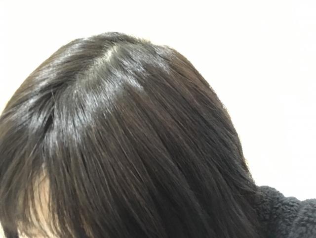 頭皮の色を自己チェック!不健康な頭皮を改善するケア方法 -美頭皮のすすめ-