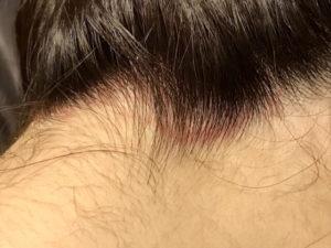 頭皮の赤み