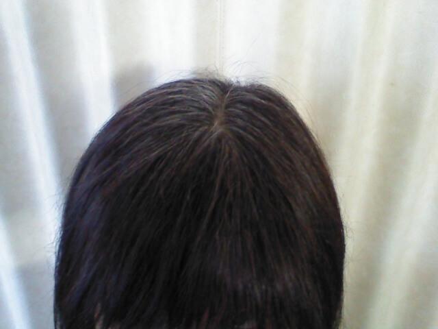 白髪は何歳からなる?白髪が気になり始める平均年齢と今からできる対策も紹介します! -美頭皮のすすめ-