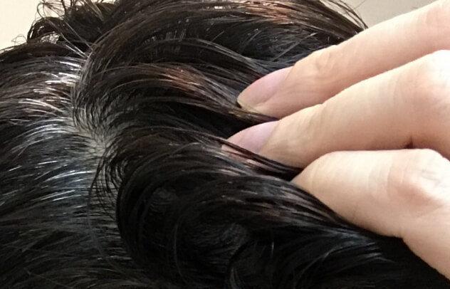 頭皮がべたべたする…皮脂が多くなってしまう原因と対策を紹介! -美頭皮のすすめ-